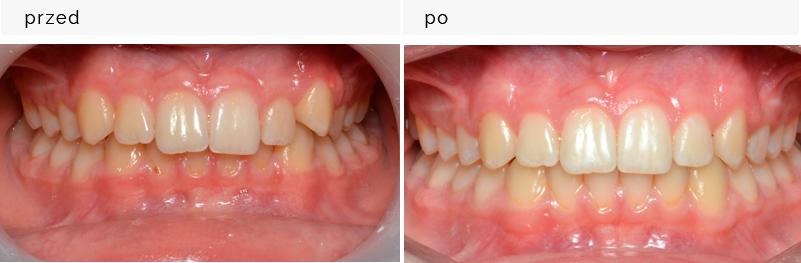 Zastosowanie aparatu invisalign w leczeniu tyłozgryzu asymetrycznego